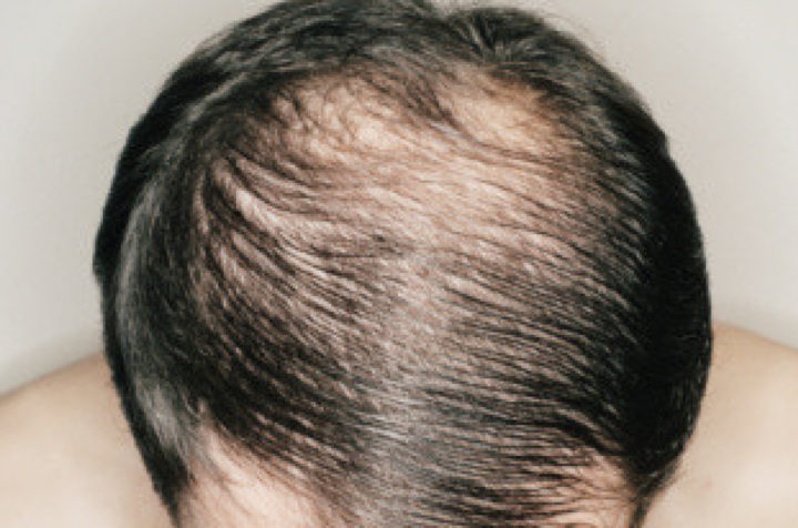 An Overview On Why You Should Not Fall Prey To Outdated Hair Transplantation!