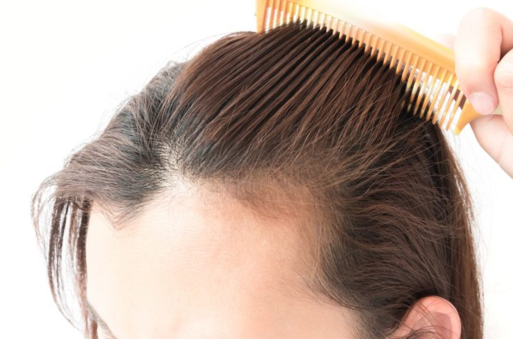 Common Mistakes To Avoid While Choosing A Hair Transplant Clinic