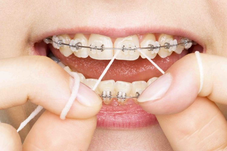 Consideration For Auckland Dentist ACC Dental Injury Claims