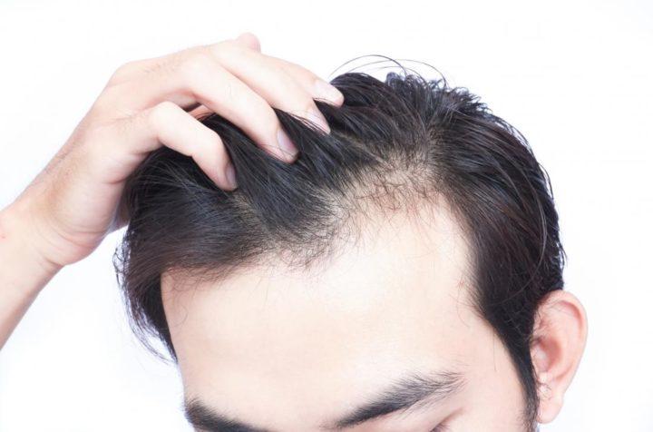 Customized Vs Ready Made Hair Systems