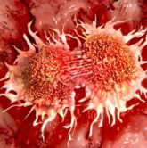 How to Overcome Cancer Discomforts