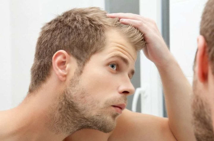 Say no to hair loss with new PRP Treatment for Hair Loss in Delhi